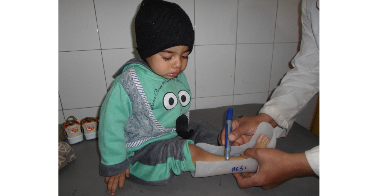 Young boy receiving free orthopedic care